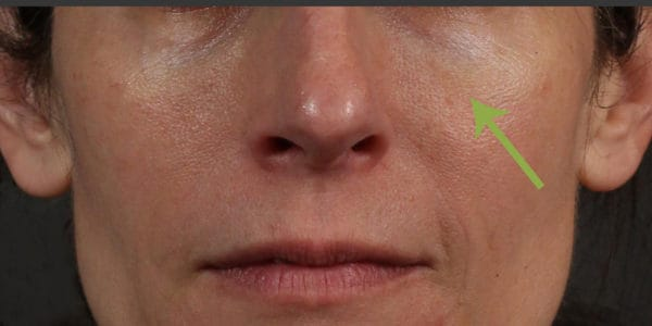 Before & After Skin Treatment Photos | Timeless Skin Solutions